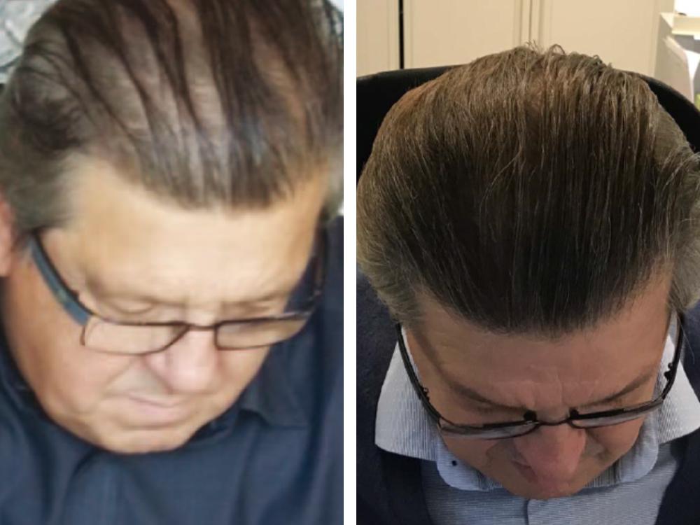 HSR before after 6 months
