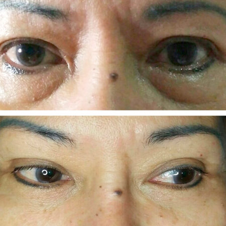 NBE 800 DS 5 treatments