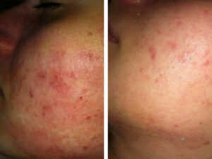 rf acne 3 treatmens