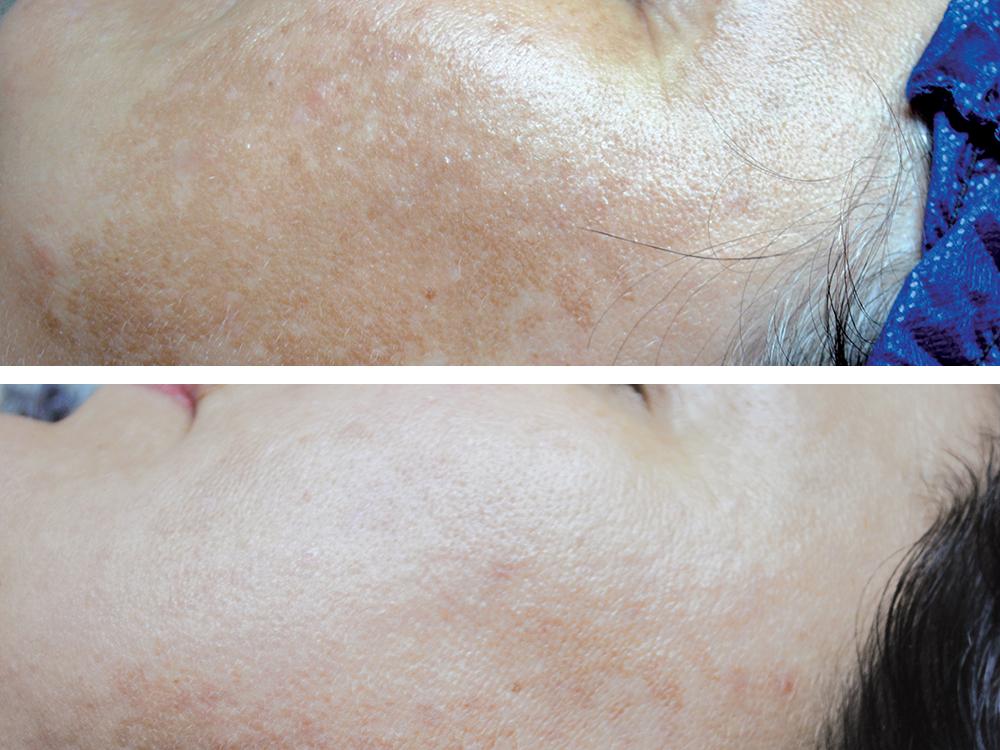 rf hyperpigmentation 1 treatment