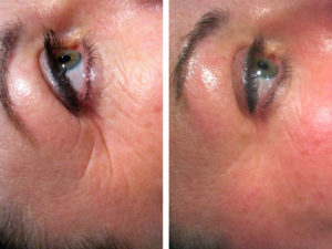 rf wrinkles 1 treatment