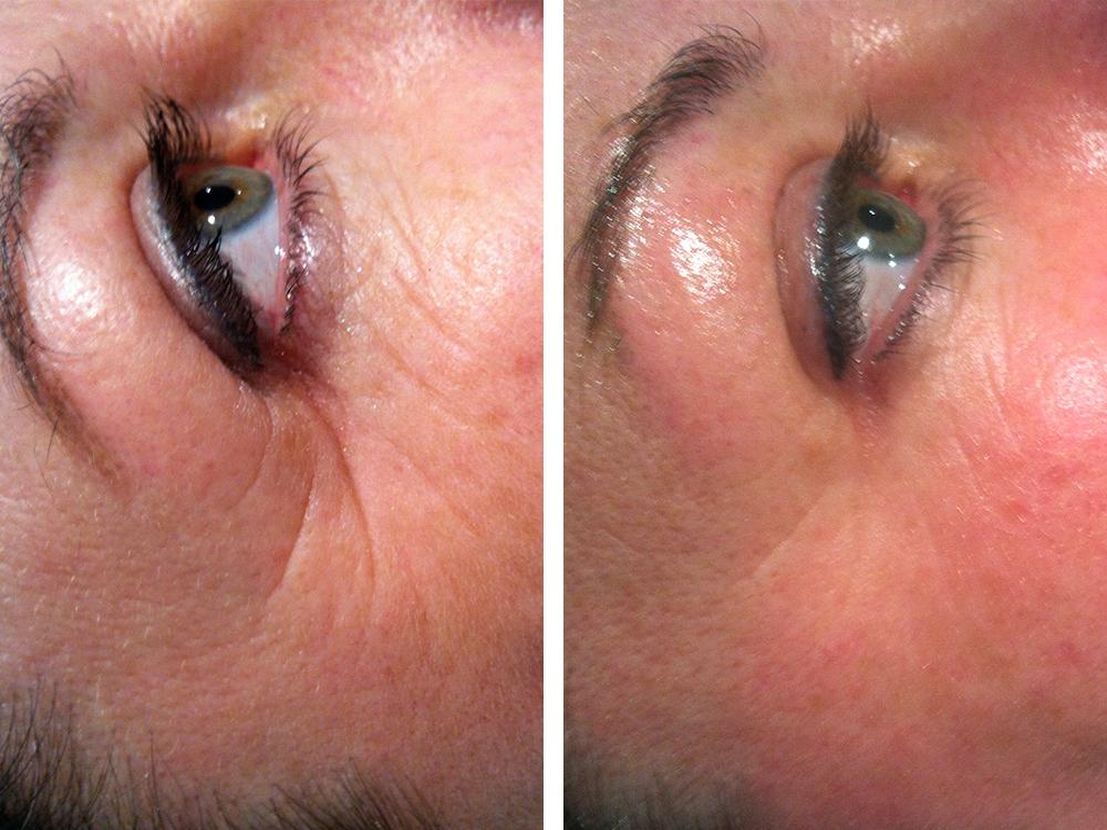 rf wrinkles 1 treatment